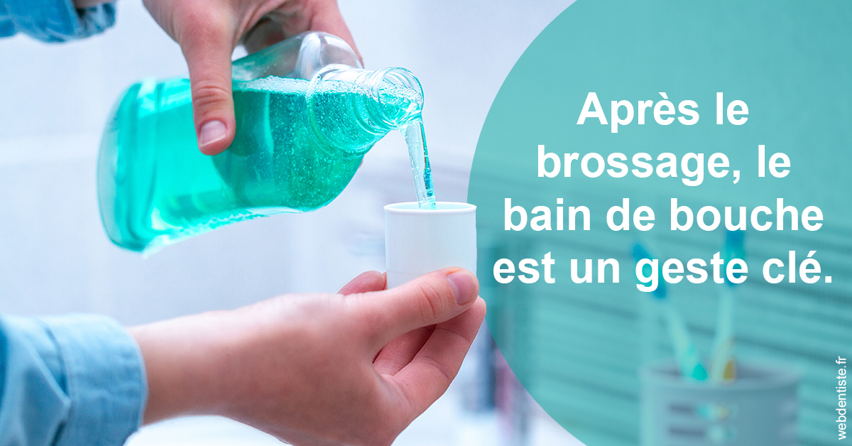 https://selarl-cabinet-dentaire-de-montchat.chirurgiens-dentistes.fr/Bains de bouche 2