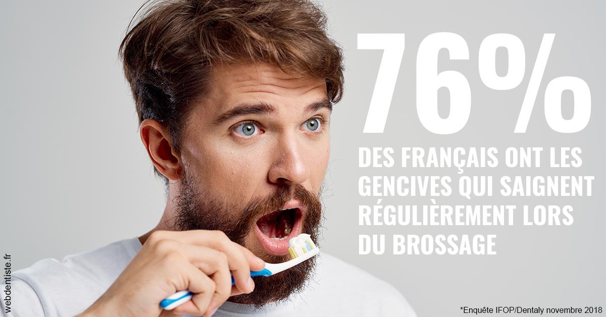 https://selarl-cabinet-dentaire-de-montchat.chirurgiens-dentistes.fr/76% des Français 2