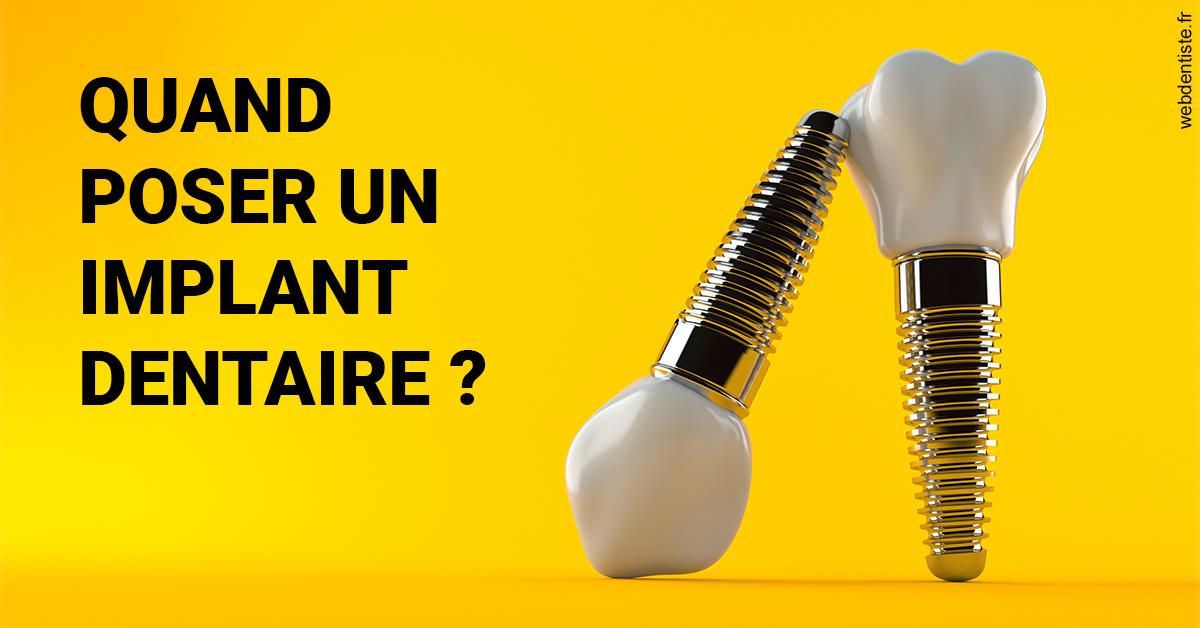 https://selarl-cabinet-dentaire-de-montchat.chirurgiens-dentistes.fr/Les implants 2