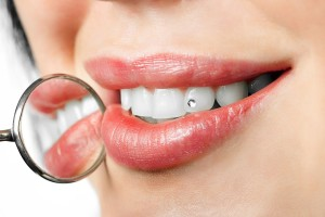 LES DANGERS DU PIERCING BUCCAL